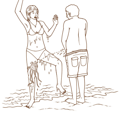 ipeeing_on_jellyfish_sting_01